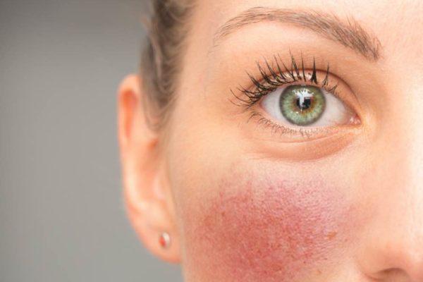 Plymouth dermatologist mole removal