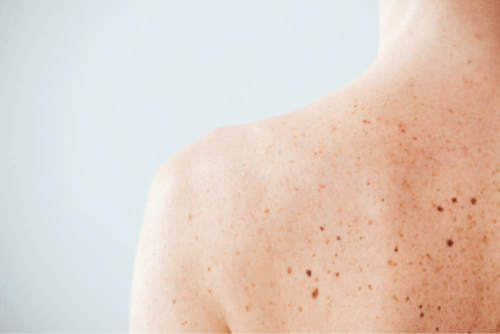 Plymouth mole removal dermatologist